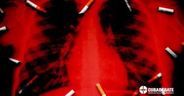 Dos personas fallecen cada hora por tabaquismo activo en Cuba